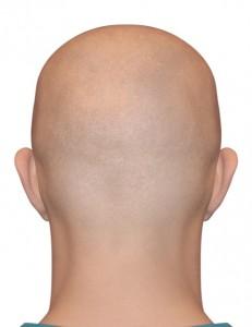 רופאים להשתלת שיער